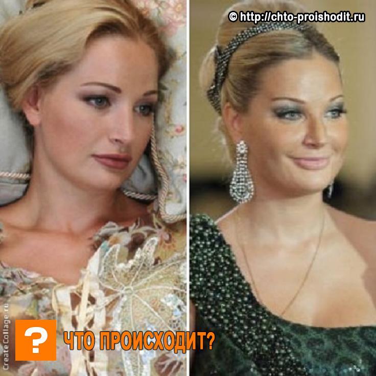 Мария Максакова: до и после пластики (фото)
