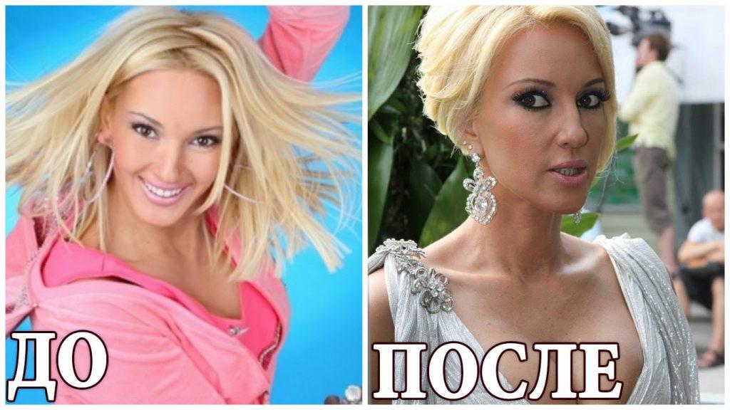 Фото Леры Кудрявцевой (актриса) до и после пластики