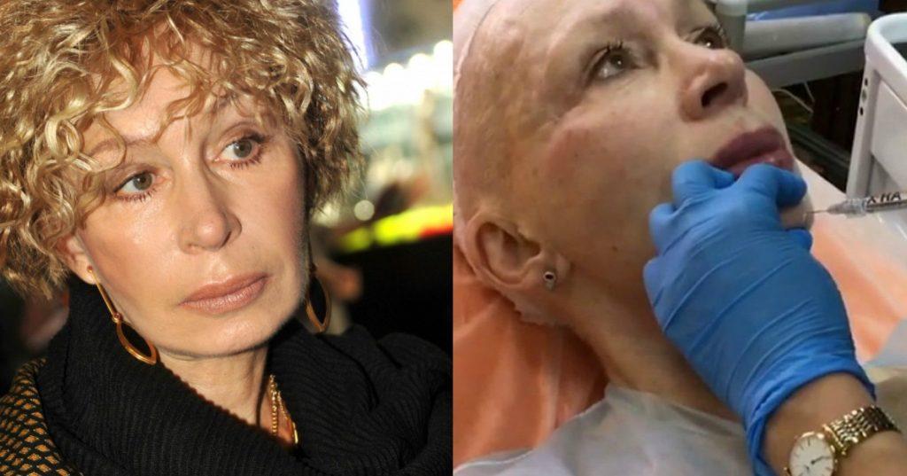 Фото Татьяны Васильевой до и после пластики