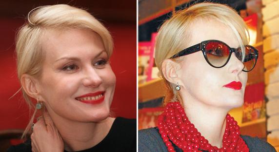 Фото Ренаты Литвиновой (актриса) до и после пластики