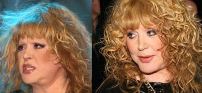 Фото Аллы Пугачевой (певица) до и после пластики