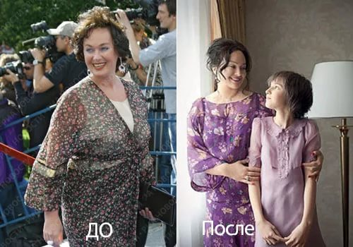 Фото Ларисы Гузеевой до и после пластики