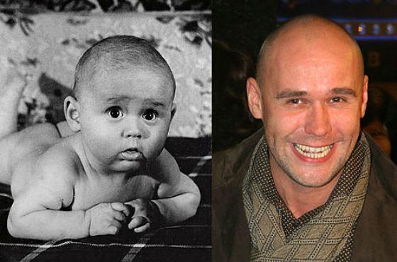 Фото Максима Аверина до и после пластики