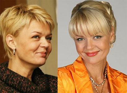 Фото Юлии Меньшовой до и после пластики
