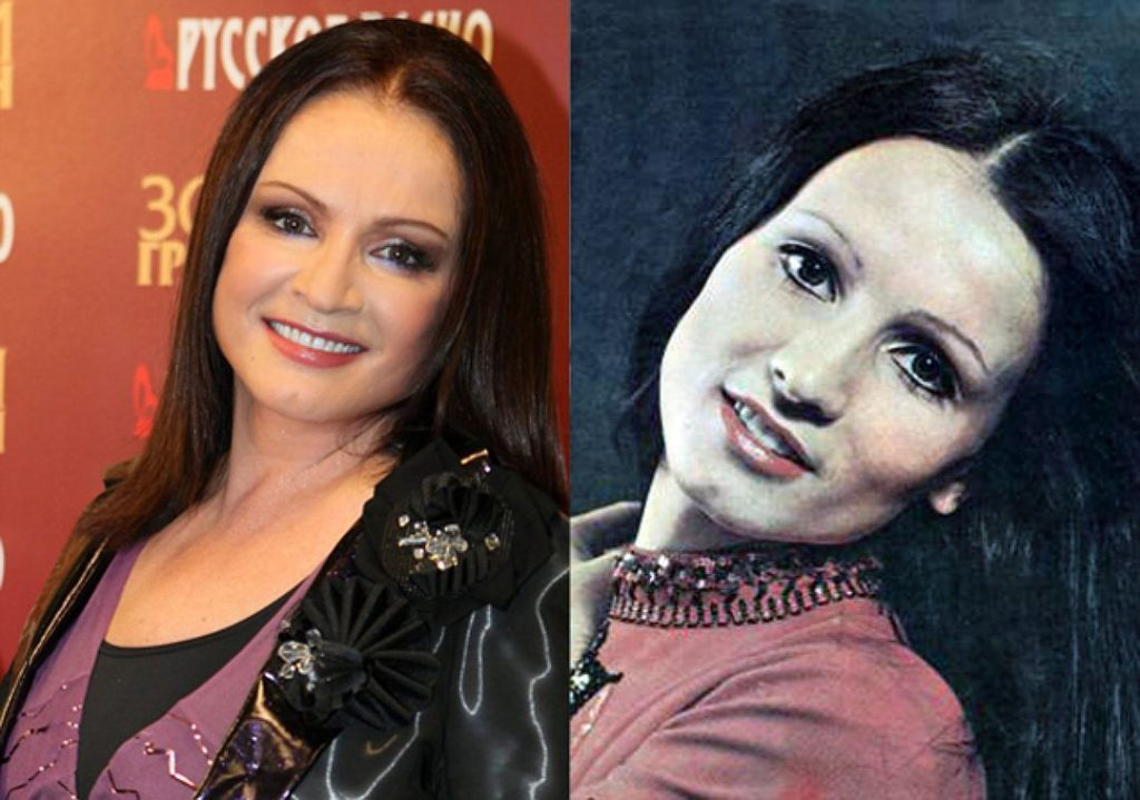 Фото Софии Ротару до и после пластики
