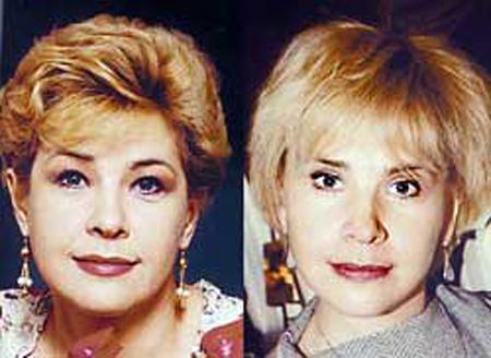 Фото Татьяны Догилевой до и после пластики