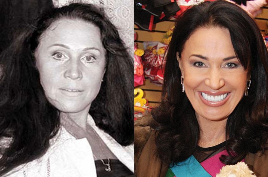 Фото Надежды Бабкиной до и после пластики фото
