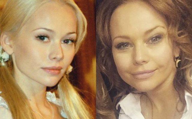 Фото Елены Кориковой до и после пластики