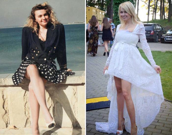 Фото Яны Рудковской до и после пластики