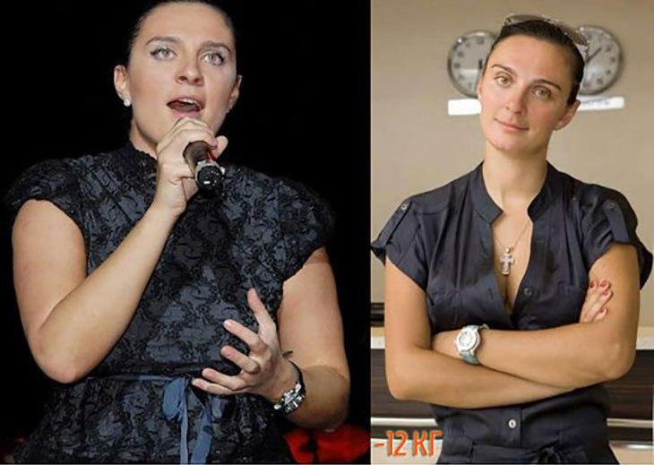 Фото Елены Ваенги до и после пластики