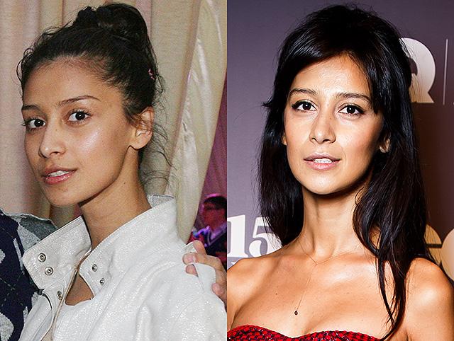 Фото Равшаны Курковой до и после пластики