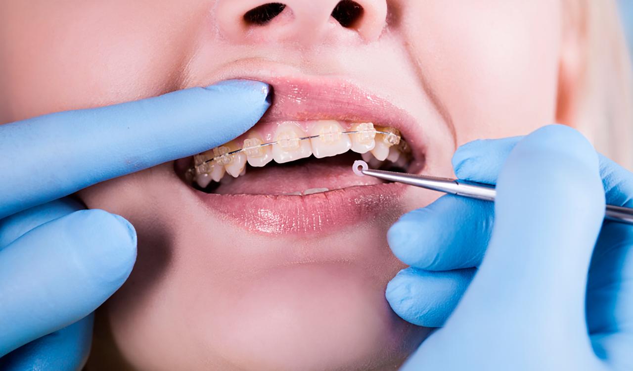 Брекеты в ортодонтическом лечении