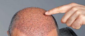 Лечение облысения с помощью пересадки волос