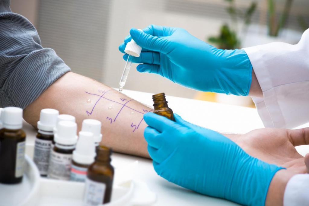 Как и где сделать тест на аллергию