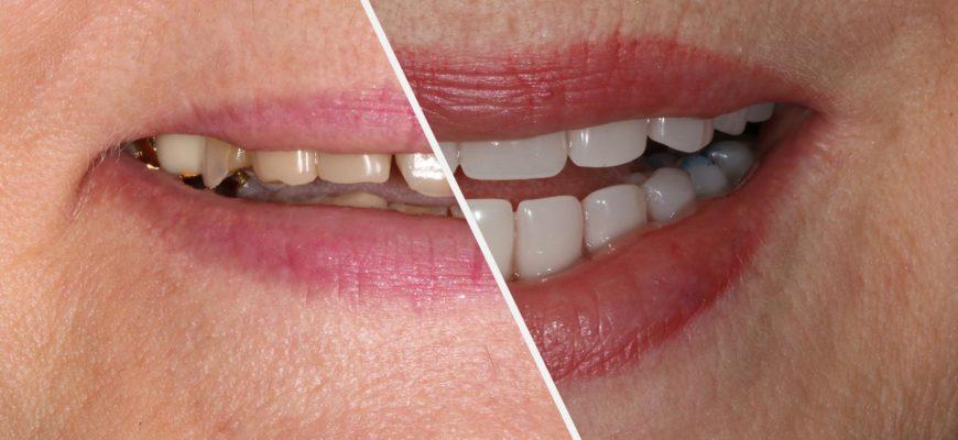 Базальная имплантация – метод восстановления всех зубов при сильной атрофии кости